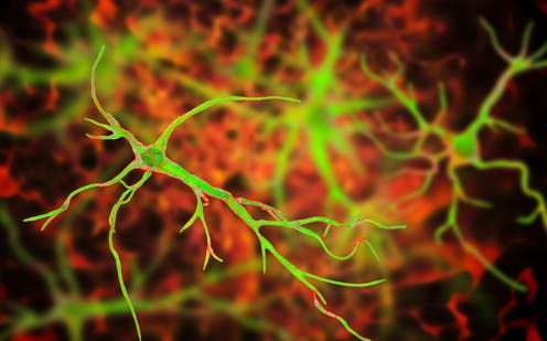 The biological switch that could turn neuroplasticity on and off in the brain – podcast